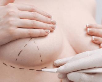 cirurgia plástica - cirurgião plástico médico sem fila
